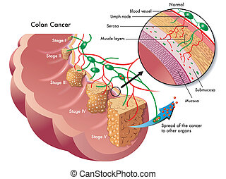 medical illustration of the different stages of colon cancer