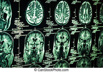 Very sharp scan of the human brain in green